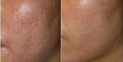 Công nghệ Mesotherapy trong trị sẹo lõm, Làm đẹp,